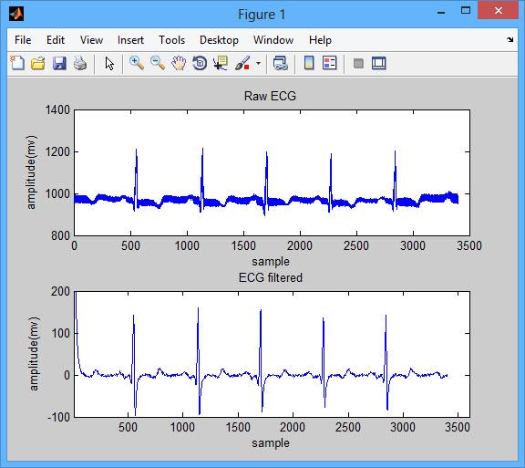 فروش پروژه تشخیص QRS در سیگنال ECG با نرم افزار MATLAB همراه گزارش فارسی
